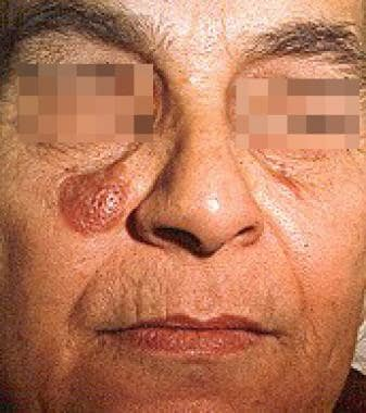 granuloma faciale background pathophysiology etiology
