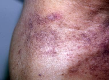 Close-up of the above patient's eruption. Courtesy