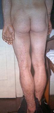 Extensive unilateral lichen striatus that affects