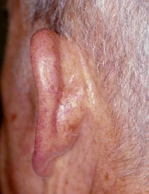 Posterior (medial) surface of the ear. The skin is