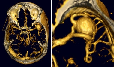 Cerebral aneurysms. CT angiography of a right midd