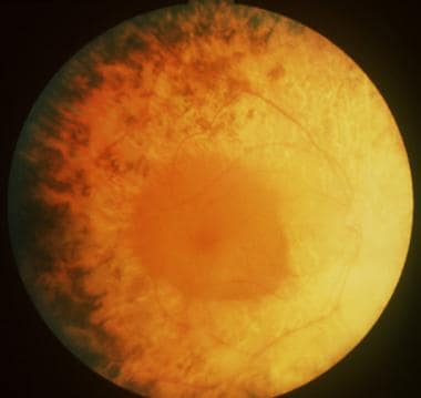 Usher syndrome with typical retinitis pigmentosa a
