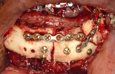 Mandible stabilized with plate-and-screw fixation.