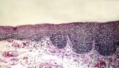 Progressively severe atypia. The epithelium to the