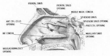 Sagittal section of the lateral nasal wall demonst