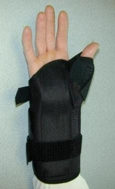 Anterior view of a hand in a thumb spica splint.