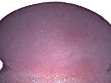 Spitz nevus, intradermal/desmoplastic type (hemato