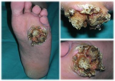 Verrucous carcinoma; an exophytic and hyperkeratot