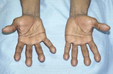 Clubbing. Photograph shows the palmar surface of t