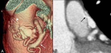 Coronary artery fistula: Volume-rendered CT image