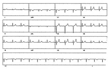 Sinus rhythm in same patient with atrioventricular