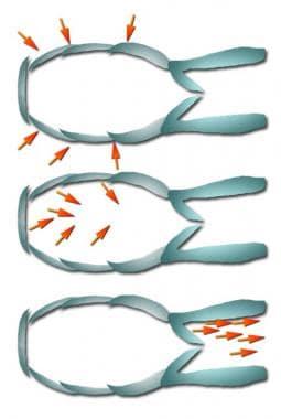 Lymphatic 1-way valves.