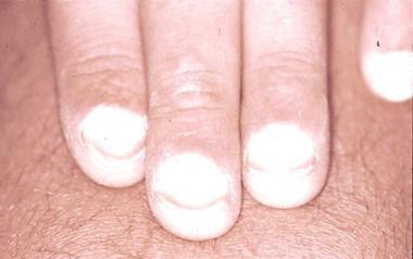 Terry nail.
