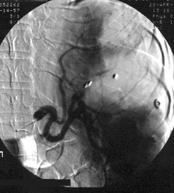 Spleen, trauma. Arteriogram obtained with a main s