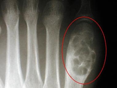 Radiograph of the first metatarsal of a 16-year-ol