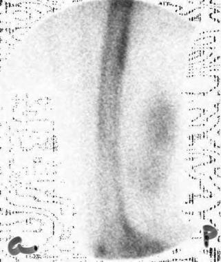 Spot image of a technetium-99m bone scintigram (de