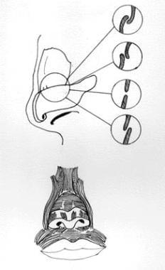 Nasal scroll.
