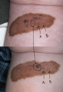 This large congenital nevus developed papular area