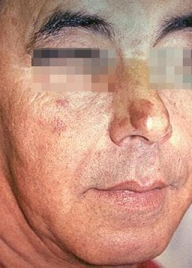 granuloma faciale clinical presentation history physical