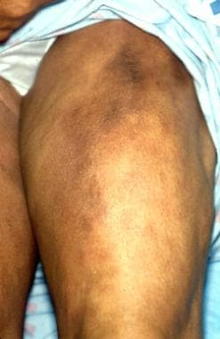 Calcinosis cutis appearing as an indurated and nod