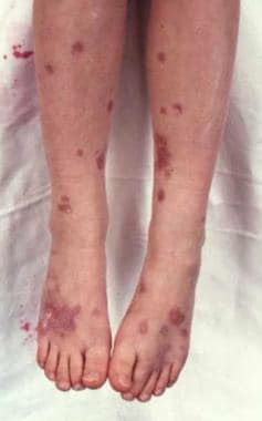 Cutaneous sarcoidosis in a patient with Nijmegen b
