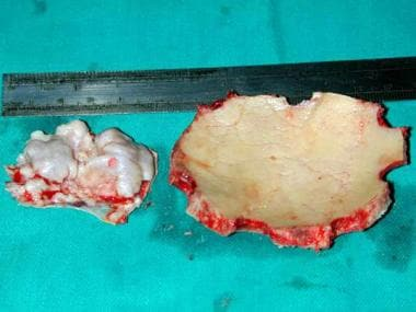 Case 1: Bone flap seen along the removed meningiom