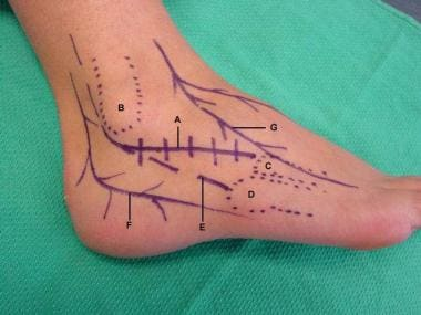 Anatomy of lateral incision: (A) lateral incision,