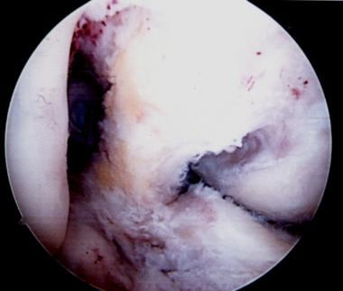 An additional view of the posterior cruciate ligam
