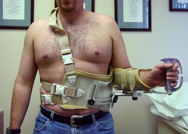 Postoperative immobilization in a gunslinger brace