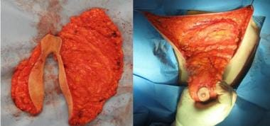 Left: The surgical piece is removed from the left
