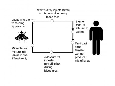 Simplified life cycle of Onchocerciasis volvulus.