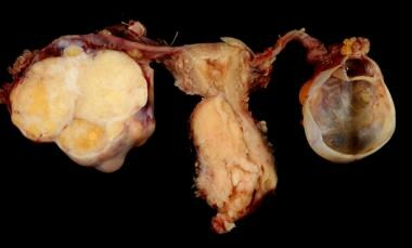 Cervical carcinoma with adnexa.