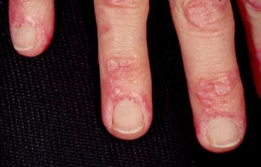 Gottron papules and nailfold telangiectasia are pr