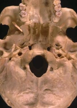 Skull base relationships. The lateral pterygoid pl