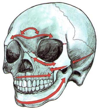 Horizontal buttresses of the nasoorbitoethmoid com