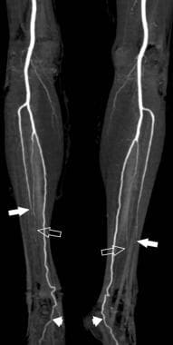 Angiogram showing poor candidate for fibular flap.
