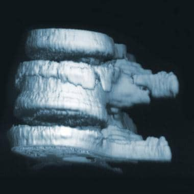 Computed tomography scanning with 3-dimensional re