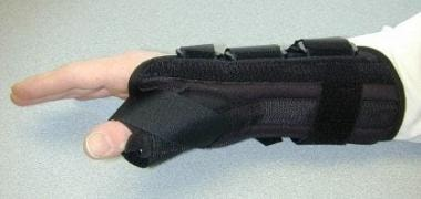 Lateral view of a hand in a thumb spica splint.