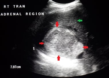 This image shows a relatively large right adrenal