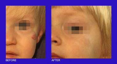 Hemangioma on the left cheek with clearing after t
