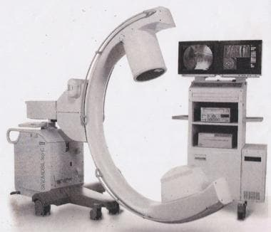 C-arm fluoroscopic unit.