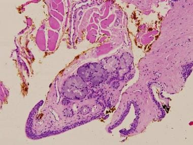 The Cowper's glands observed in a transrectal ultr
