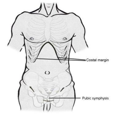 Abdominal anatomic landmarks.