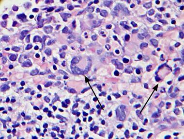 Bone marrow section, hematoxylin and eosin. Note m