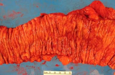 Another gross specimen illustrating ulcerative col