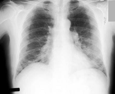Chest radiograph in a 60-year-old dairy farmer who