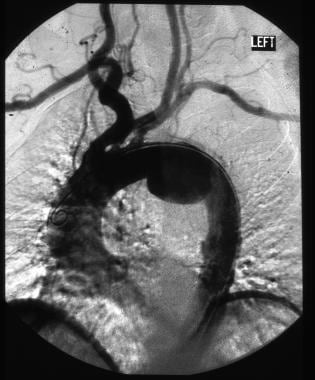 Digital subtraction angiogram shows a pseudoaneury