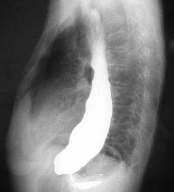 Lateral view from a barium swallow study demonstra