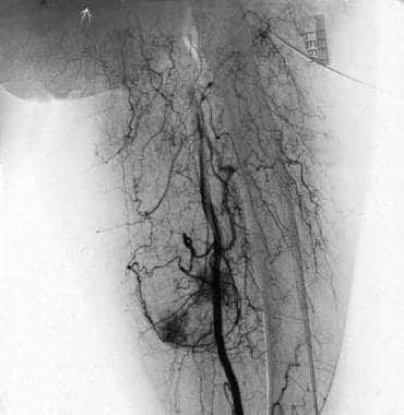 Angiogram reveals tumor hypervascularity (same pat