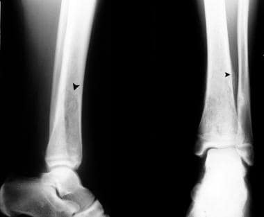 Rarefaction is seen in the lower tibia associated